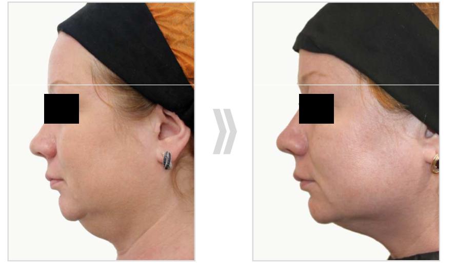 Prostrolane antes y después