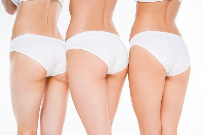 Preguntas sobre liposucción