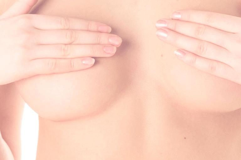 Mamas tuberosas: solución y tratamiento