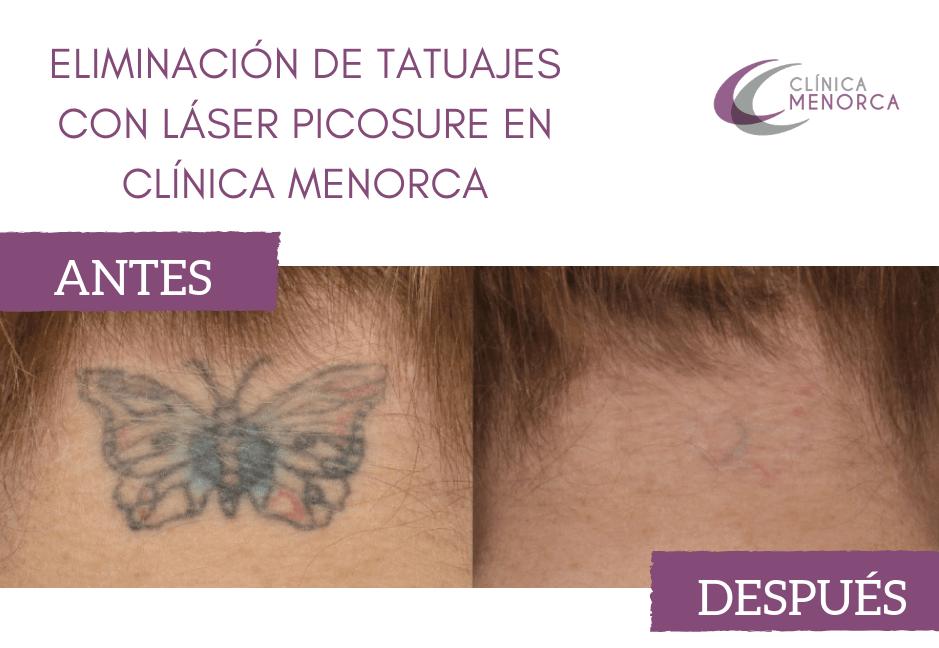 Antes y después: Eliminación de tatuajes con láser picosure en Clínica Menorca