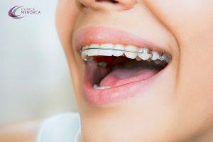retenedores dentales