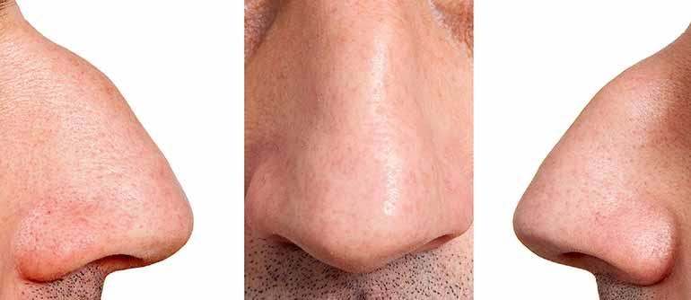 nariz de halcón