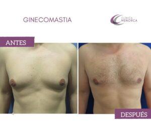 reducir ginecomastia