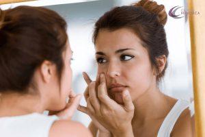 cómo tratar un brote de acné